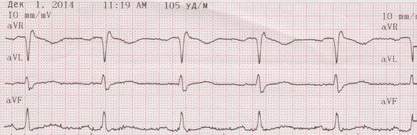 Дисметаболическая кардиомиопатия: что это такое, код мкб 10, лечение