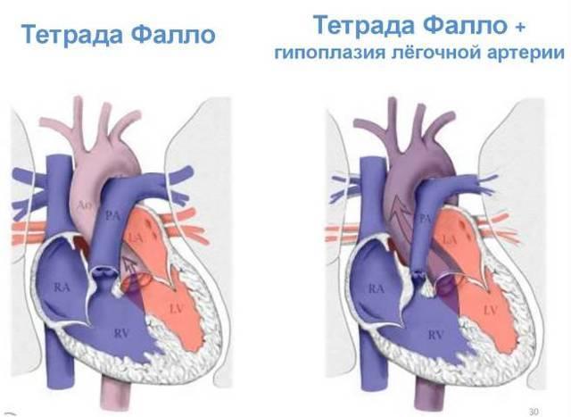 Шумы в сердце у ребенка: причины, симптомы, диагностика и лечение