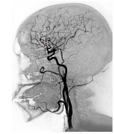 Ангиография сосудов и артерий: виды и подготовка к рентгеновскому исследованию, показания и противопоказания