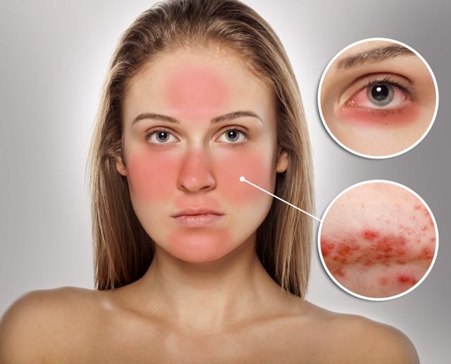 Вены на лице: причины, фото, лечение, в том числе у детей | Здоровые сосуды, лечение и профилактика