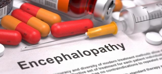 Дисциркуляторная энцефалопатия: причины и симптомы, стадии и методы диагностики, лечение и профилактика