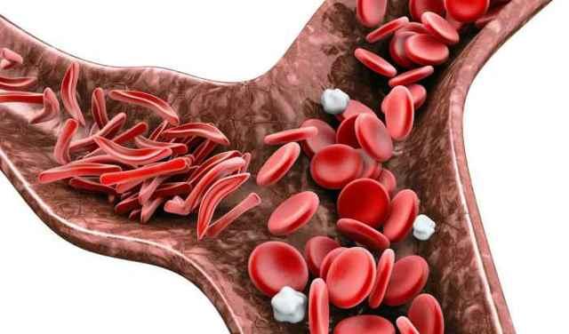 Как поднять уровень гемоглобина в крови у мужчин
