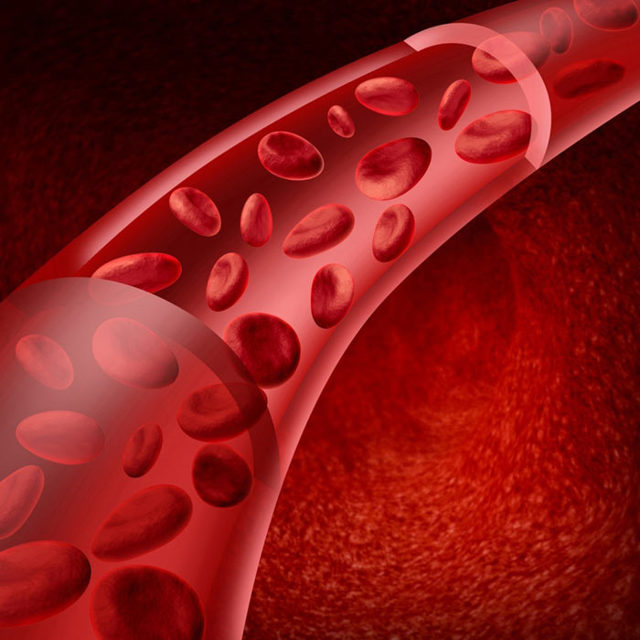 Существует ли профилактика варикоцеле и в чем она заключается