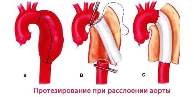 Расслоение аорты: что это такое, виды, симптомы, причины, лечение, классификация и код по МКБ-10