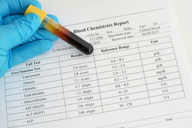 Билирубин прямой повышен: что это значит, причины, диагностика, лечение