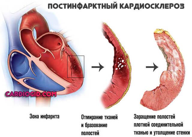 Мерцательная аритмия: причины возникновения, симптомы и лечение, осложнения и последствия