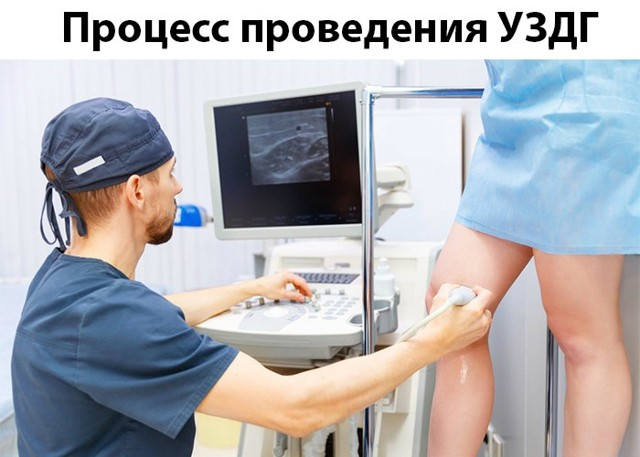 УЗДГ сосудов нижних конечностей (вен и артерий): как проводится, плюсы и минусы процедуры, показания