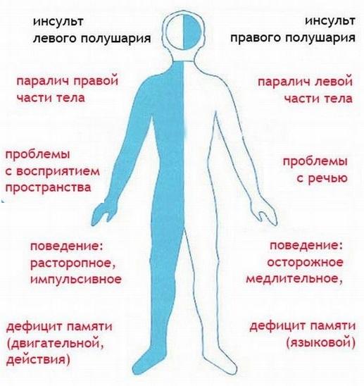 Геморрагический инсульт головного мозга: причины и симптомы, диагностика и лечение, осложнения и прогноз