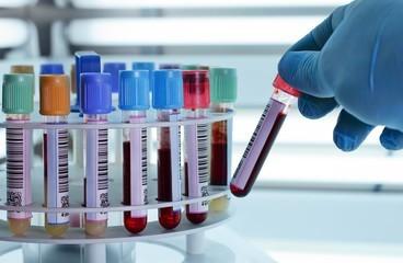 Аспартатаминотрансфераза: что за показатель крови и какова его норма в анализе, о чем говорит повышенный ast