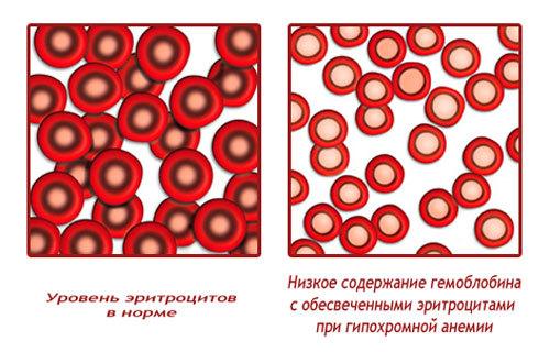 Среднее содержание гемоглобина в эритроците (МСНС)