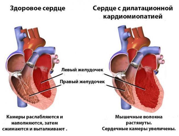 Дилатационная кардиомиопатия: лечение сердца, причины возникновения и прогноз на жизнь