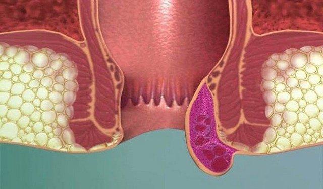 Тромбоз геморроидального узла: симптомы, причины, лечение, профилактика