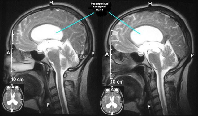 Гидроцефалия головного мозга у взрослого: причины развития, основные симптомы, лечение болезни