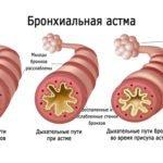 Гипертензия и гипертония: в чем разница, отличия