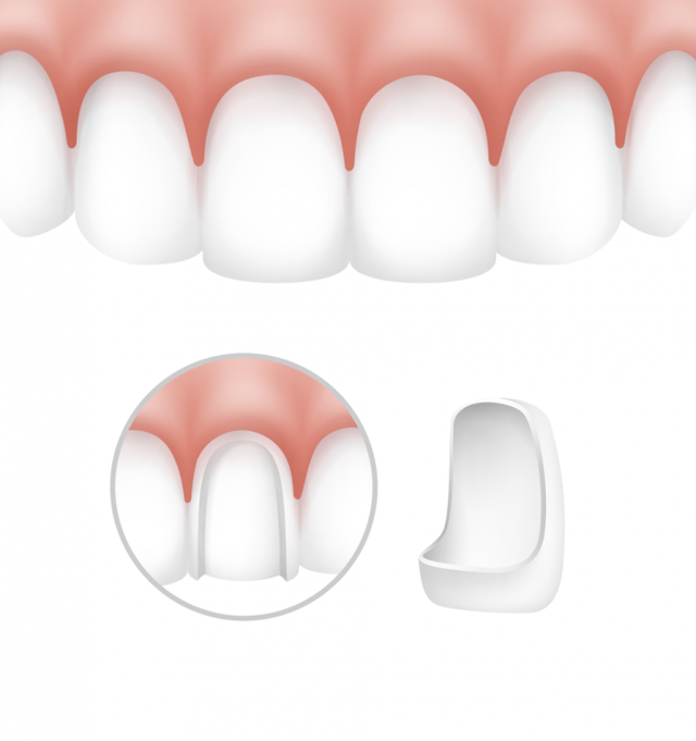 Установка виниров на передние зубы в СПБ: плюсы, этапы протезирования, какие виниры лучше, цена