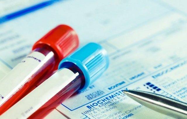 РЭА: анализ на повышенное содержание ракового эмбрионального онкомаркера, и как он расшифровывается
