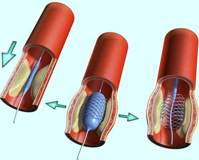 Стентирование сосудов сердца: показания к операции, методы установки, последствия