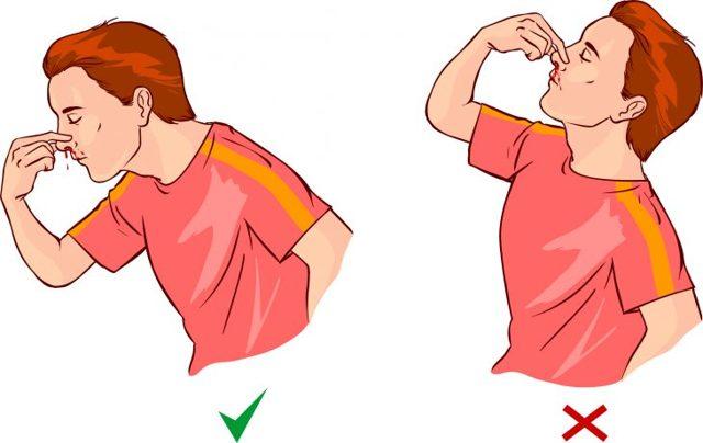 Причины появления крови из носа у ребёнка: почему часто идёт кровотечение