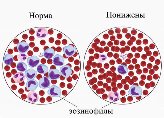 Если эозинофилы понижены: причины отклонения от нормы у взрослых и детей, методы лечения эозинопении