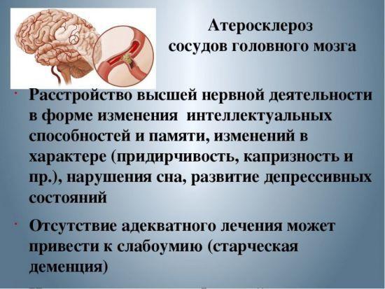Атеросклероз сосудов головного мозга (симптомы и лечение): диагностика и возможные последствия, что принимать