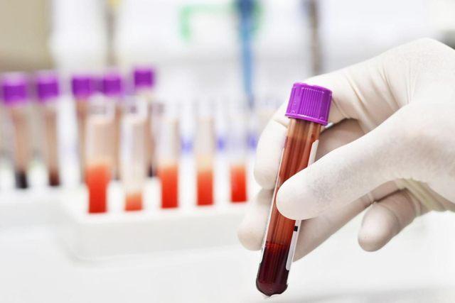 Миелоциты: нормы в анализе крови, причины повышения, лечение