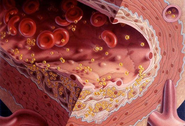 Холестерин в крови, повышена норма: причины и последствия, как лечить симптомы