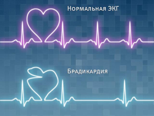 Брадикардия: причины возникновения заболевания и симптомы у взрослого, лечение болезни сердца и опасность