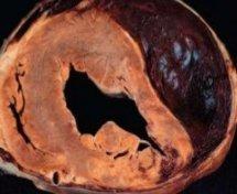 Разрыв сердца: понятие о заболевание и прогноз
