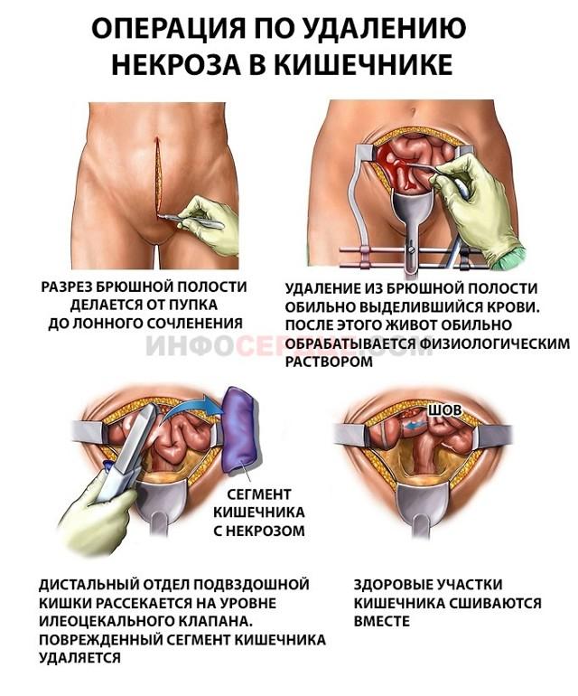 Мезентериальный тромбоз: что это такое, причины, симптомы и лечение