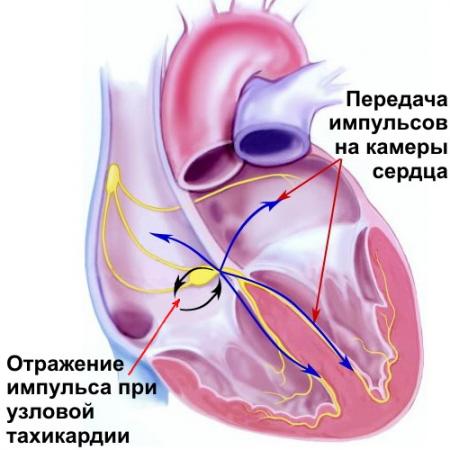 Сильное сердцебиение: причины, диагностика, что делать, профилактика