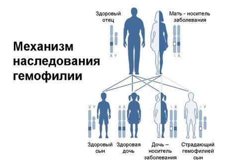 Гемофилия: причины и ген болезни, тип наследования заболевания, прогноз для пациента при появлении симптомов