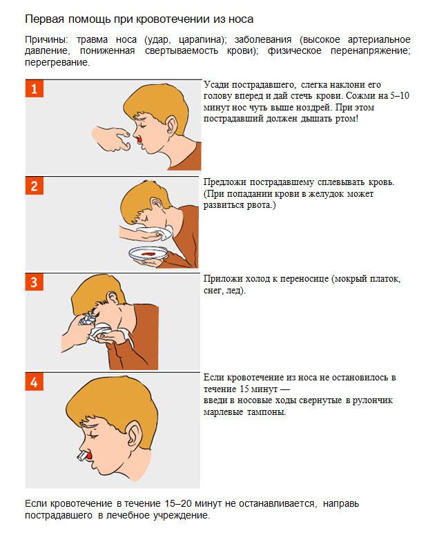 Почему на морозе из носа начинается кровотечение