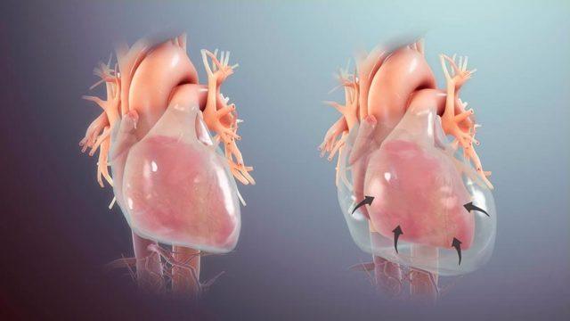 Болит сердце или нет: как отличить симптомы