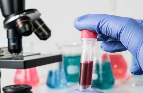 Повышение мочевины в крови: причины и симптомы, норма вещества в организме и методы лечения, профилактика