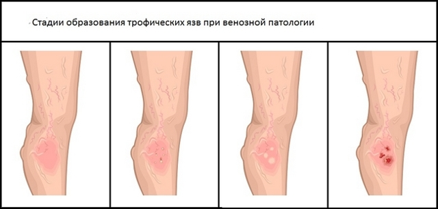 Мазь для лечения трофических язв нижних конечностей: рецепт, отзывы