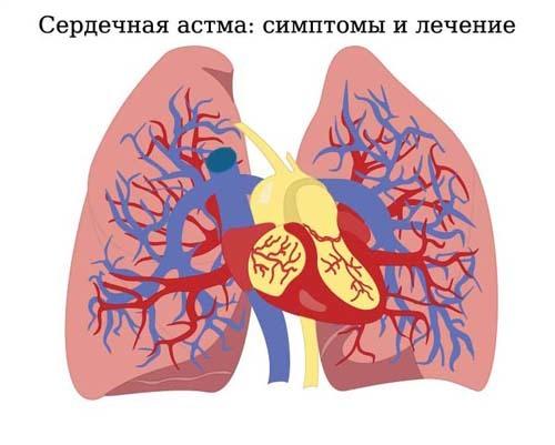 Сердечная астма: причины развития, симптомы у взрослых, диагностика и лечение приступов