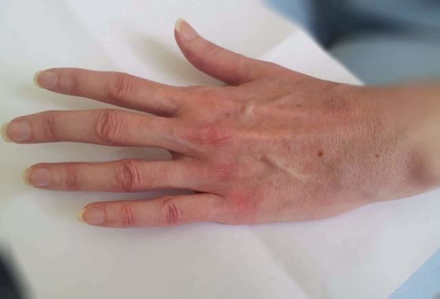 АЦЦП: показания к проведению анализа, норма антитела в крови и трактовка результата у женщин, мужчин