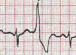 ЖЭ: причины развития и принципы классификации нарушений работы сердца, одиночный и мономорфный типы, лечение