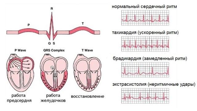 Чем опасна и какие могут быть осложнения при аритмии сердца: виды аритмий и их опасности