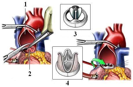 Аортальная недостаточность: степени, причины, симптомы, диагностика и лечение