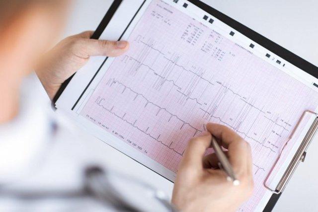 Биоэлектрическая активность сердца: что это такое, как измерить
