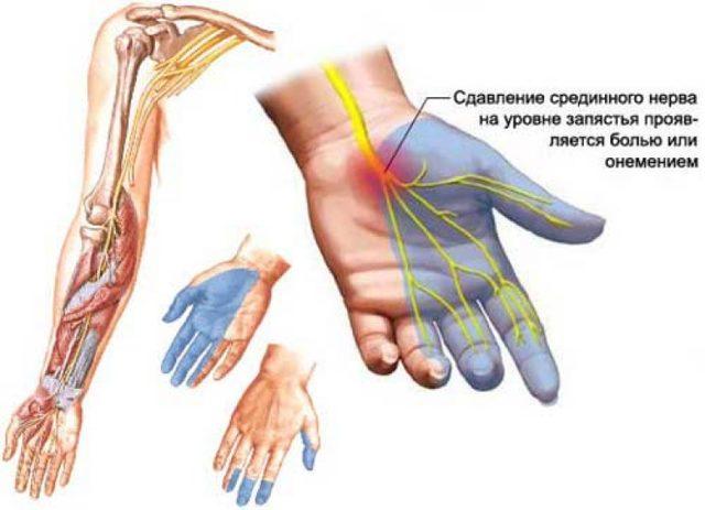 Онемение пальцев рук: причины и лечение, народные средства