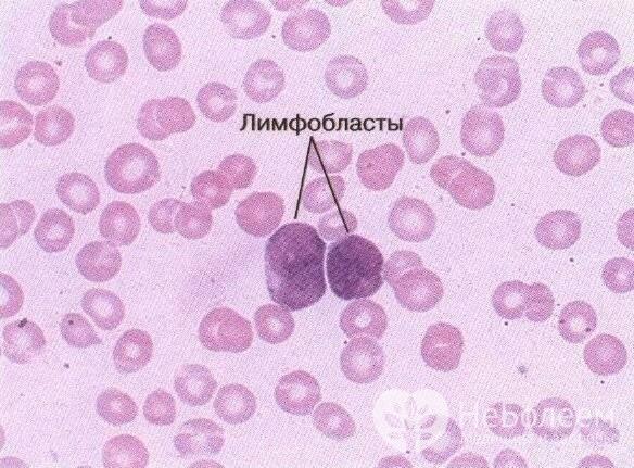 Острый лейкоз крови: причины развития, симптомы видов и стадии, как определить заболевание, лечение