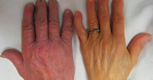 Полицитемия: причины возникновения и стадии, симптомы и анализ крови, методы лечения polycythemia