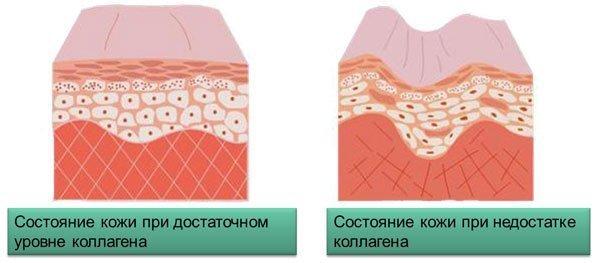 Холодец вызывает тромбы: правда или миф?