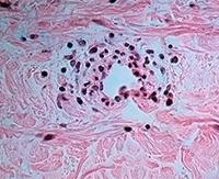 Геморрагический васкулит у взрослых: причины, симптомы и лечение