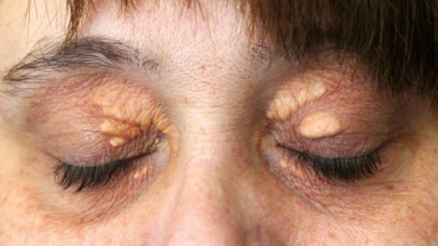 Гиперхолестеринемия: что это такое, причины, симптомы, последствия, диета и лечение народными средствами