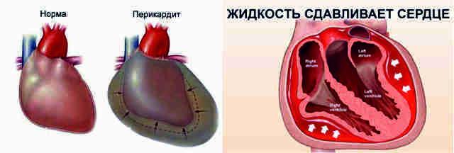 Что такое панцирное сердце и почему развивается