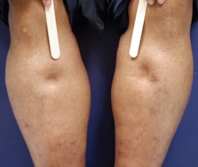 Отеки ног при сердечной недостаточности: причины, симптомы, лечение и профилактика