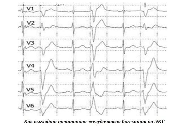 Бигеминия: что это такое, причины, симптомы, проявления на ЭКГ, лечение